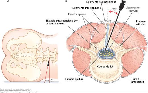 Punción Lumbar Lateral